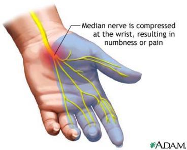 أصابع يديك ... مابها من أسرار   - صفحة 4 Median