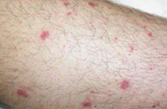 Petechiae-Pictures-300x225.jpg